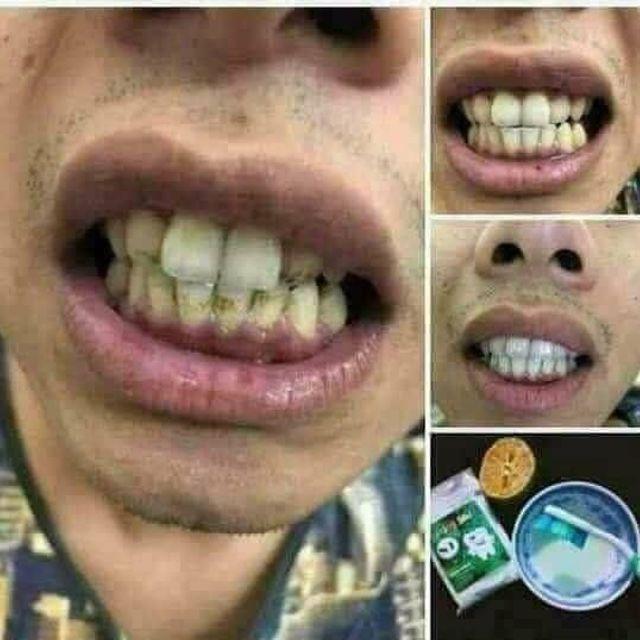 Bột tẩy trắng răng sỉ giá rẻ