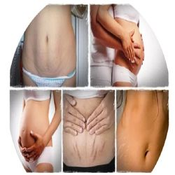 Kem hỗ trợ điều trị rạn da khô da cho phụ nữ mang thai và sau sinh B3