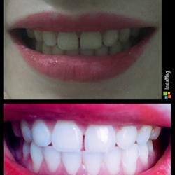 tẩy trắng răng tại nhà ở tphcm giá sỉ