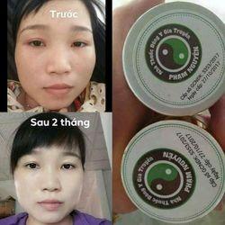 Kem đông y gia truyền Phạm Nguyễn trị mụn nám tàn nhang giá sỉ, giá bán buôn