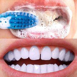 Kem đánh trắng răng giá sỉ